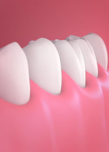 House of Dental - Treatment