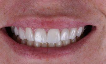 House of Dental - After