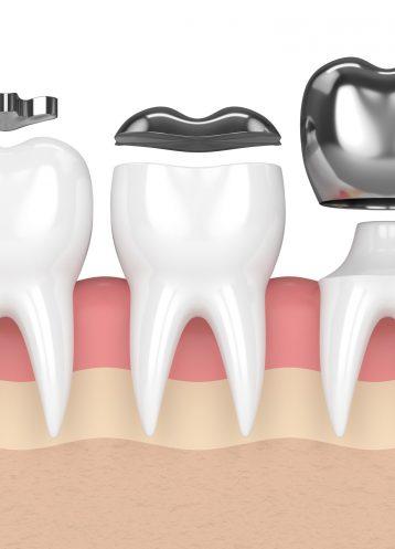 Inlays and Onlays - Treatment