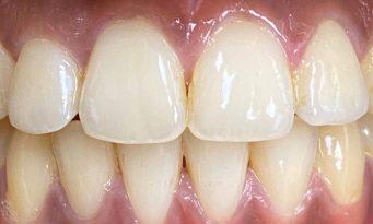 House of Dental - Before