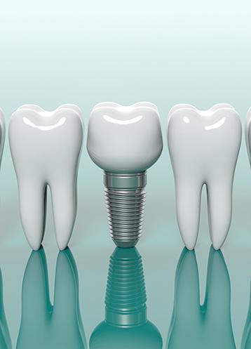 Dental Implants - Treatment